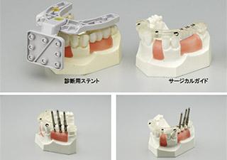 KISSYSTEM ガイドサージェリーによる手術プランニングイメージ